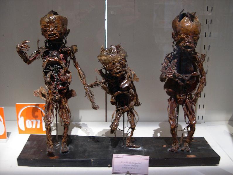 musée paris foetus